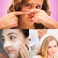 Akne - Ursachen und Behandlungsmethoden.